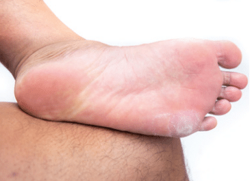 5 common skin problems on feet